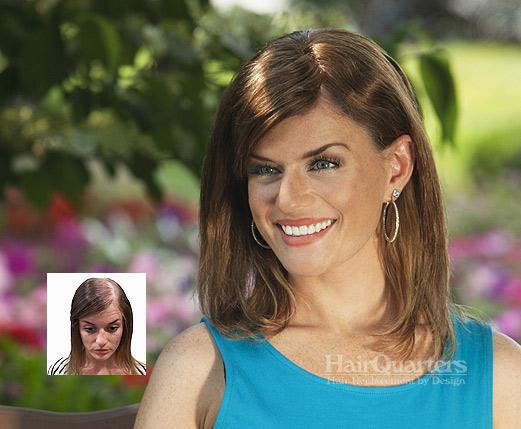 hair replacement women surfside beach sc