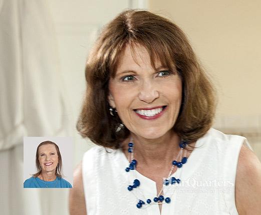 Womens hair restoration Myrtle Beach SC