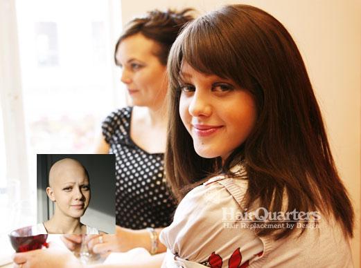 Alopecia Wigs South Carolina