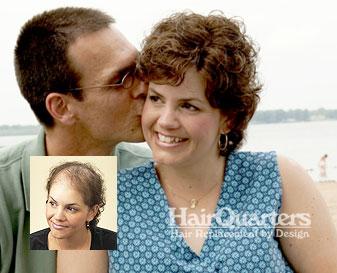 chemotherapy alopecia wigs myrtle beach sc