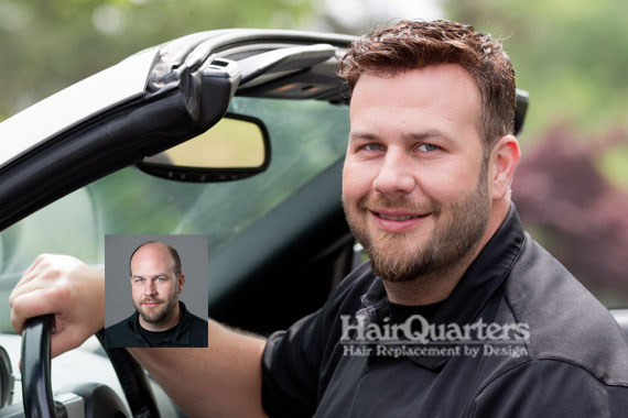 Mens hair replacement systems. Myrtle Beach SC